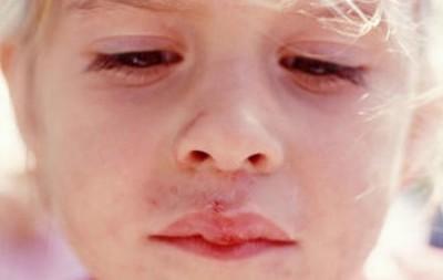 Герпес 6 типа у детей и другие разновидности заболевания