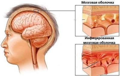 Менингитовая инфекция: виды, причины, симптомы