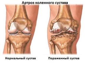 Артроз - наиболее распространенное заболевание суставов