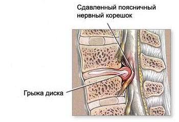 Межпозвоночная грыжа шейного отдела: симптомы, диагностика, лечение