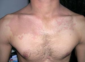 Солнечный лишай: причины, симптомы, лечение