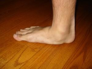 Плоскостопие является следствием деформации стопы