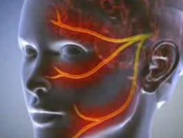 Неврит тройничного нерва: как излечить воспаление?