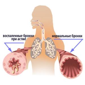 Основной причиной возникновения астмы является сверхчувствительность бронхов на физические или фармакологические факторы
