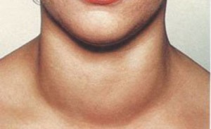 Гипотиреоз относится к категории наиболее распространенных заболеваний