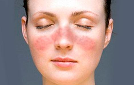 Заболевание кожи лица и кистей рук – экзема хроническая
