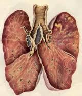 Различают две формы патологии: свежая мягкоочаговая и хроническая фиброзноочаговая