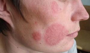 Почему на коже выросли микозы? Фото пациентов