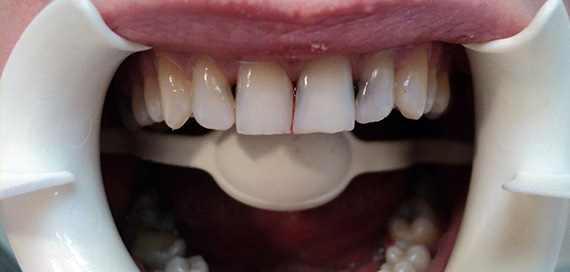 Кариес между зубами. Причины и лечение