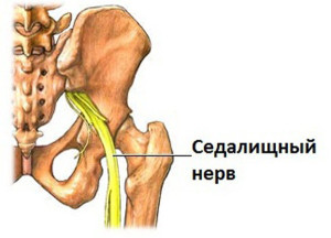 Прежде чем поставить диагноз «невралгия седалищного нерва», необходимо провести некоторые диагностические исследования