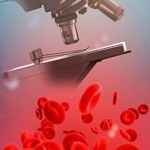 Анализ крови на пти – это процедура, которая выявляет состояние протромбинового индекса