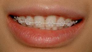 Брекеты – это скобы, которые одеваются на зубы, с целью их выравнивая или для исправления неправильного прикуса