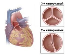 Одним из характерных симптомов двустворчатого аортального клапана является нарушение тока крови