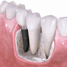 Очень часто существуют случаи, когда пациентам проделывают имплантацию зуба или протезирование