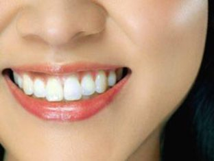Восстановление зуба с использование пломбы на штифте