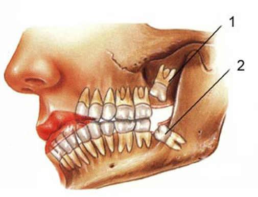 Сколько стоит удаление зуба мудрости. Основные факторы, влияющие на цену