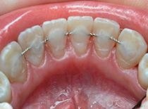 По статистике шинирование применяют к верхним и нижним передним зубам
