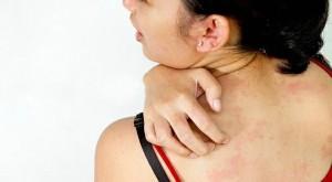 Аллергия может проявляться легкими симптомами, а может носить тяжелый характер