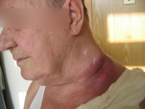 Одним из первых тревожных симптомов возникновения злокачественной опухоли средостения является незначительные припухлости или вздутия в области шеи