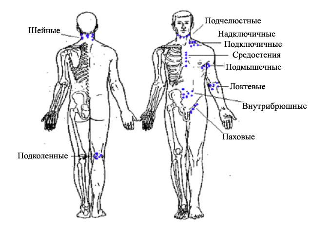 Где расположены лимфоузлы у человека и какова их роль?