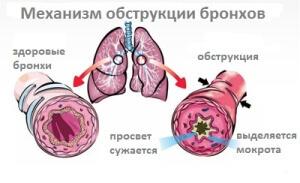 Главный признак, который характеризует бронхиальную обструкцию, заключается в наличие экспираторной одышки
