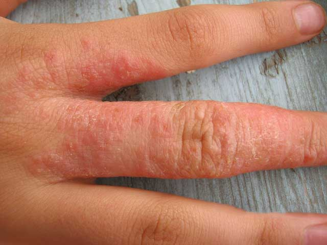 Аллергия на бытовую химию: симптомы реакции