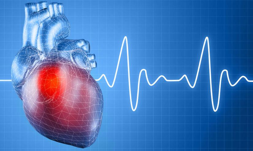Использование радиочастотной абляции сердца: показания, отзывы пациентов
