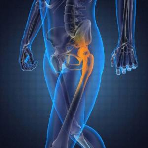 ЛФК при артрозе тазобедренного сустава: лучшие упражнения