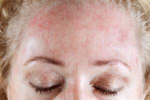 Холодовой дерматит проявляется в виде кожного зуда и шелушения