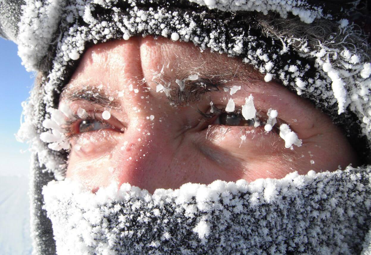 Холодовой дерматит: узнайте о заболевании больше