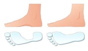 Вид отпечатка стопы в норме и при плоскостопии