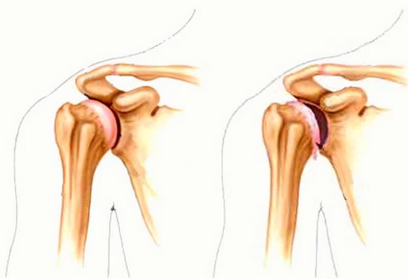 Деформирующий артроз плечевого сустава: симптомы, лечение недуга