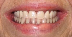 Зубные протезы способны вернуть человеку ослепительную улыбку