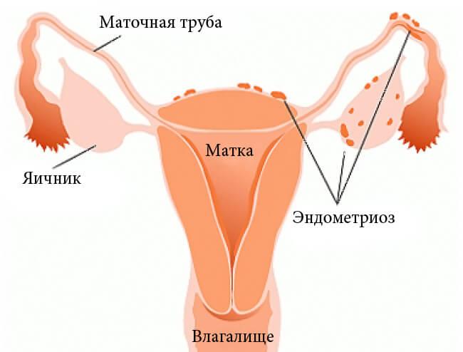 Эндометриоз: народные способы лечения недуга
