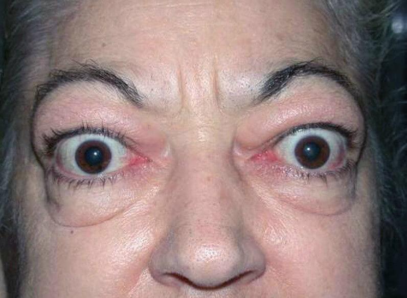 Эндокринная офтальмопатия: симптомы, причины и лечение