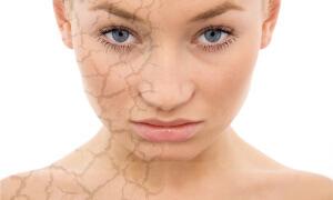 Состояние кожи лица во многом зависит от правильного рациона питания