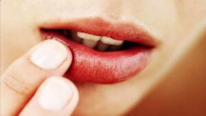 Аллергия на губах: причины, симптоматика, лечение