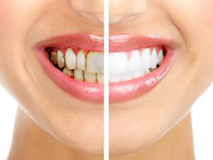 Как в домашних условиях убрать зубной камень: эффективные методы