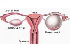 Жидкость в яичниках у женщин: причины, способы лечения