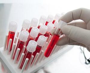 Анализ крови используется при диагностике заболеваний