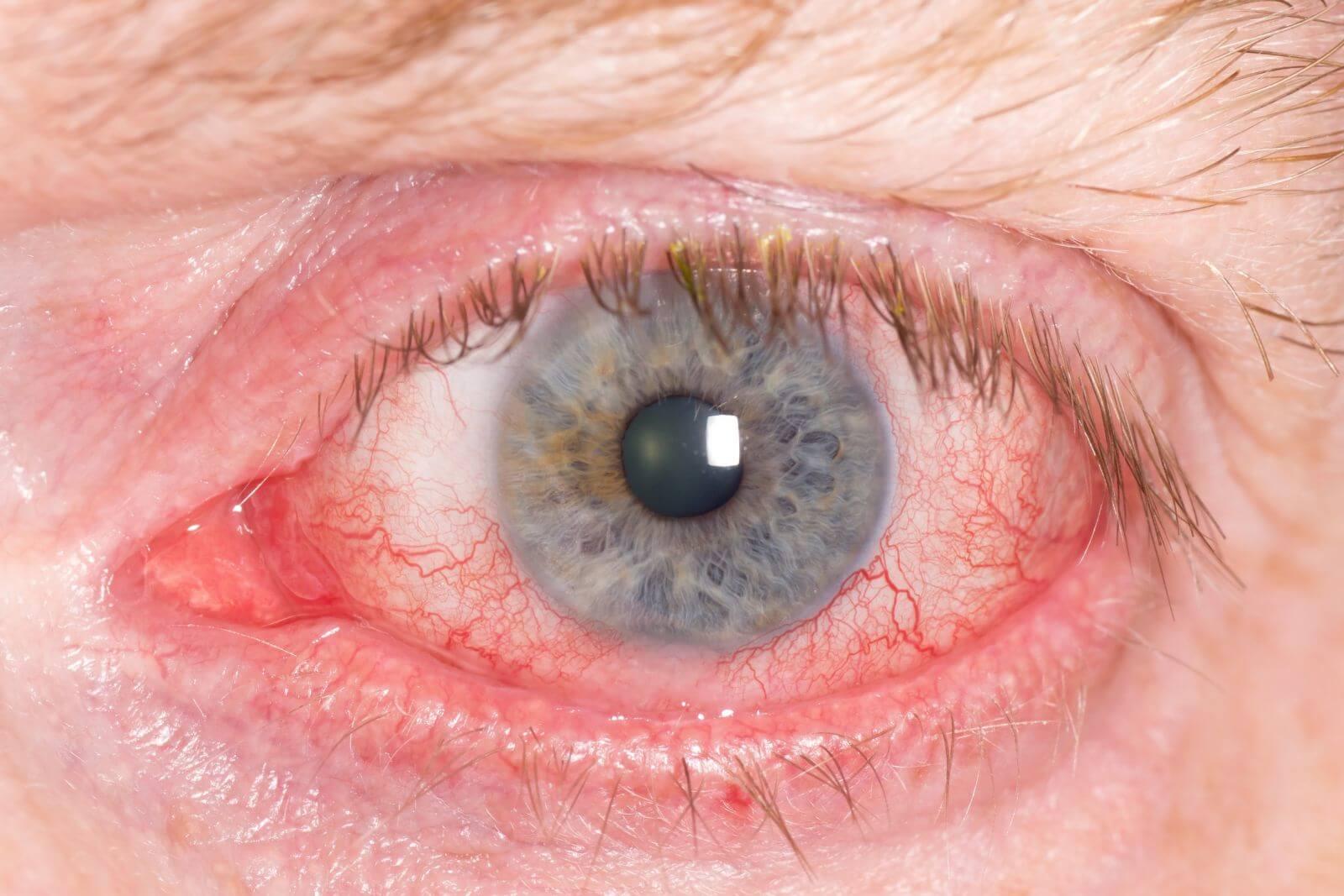 Выясняем основные причины покраснения глазного яблока