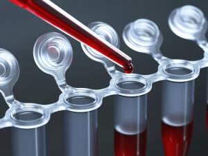 Уровень ТТГ исследуется с помощью анализа крови