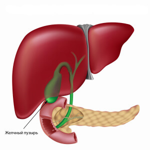 Дискинезия желчного пузыря: симптомы болезни