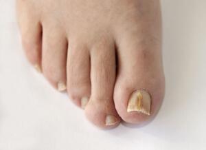 Грибок ногтей на ногах - серьезное заболевание
