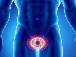 Простатит - заболевание.характеризующиеся воспалением простаты