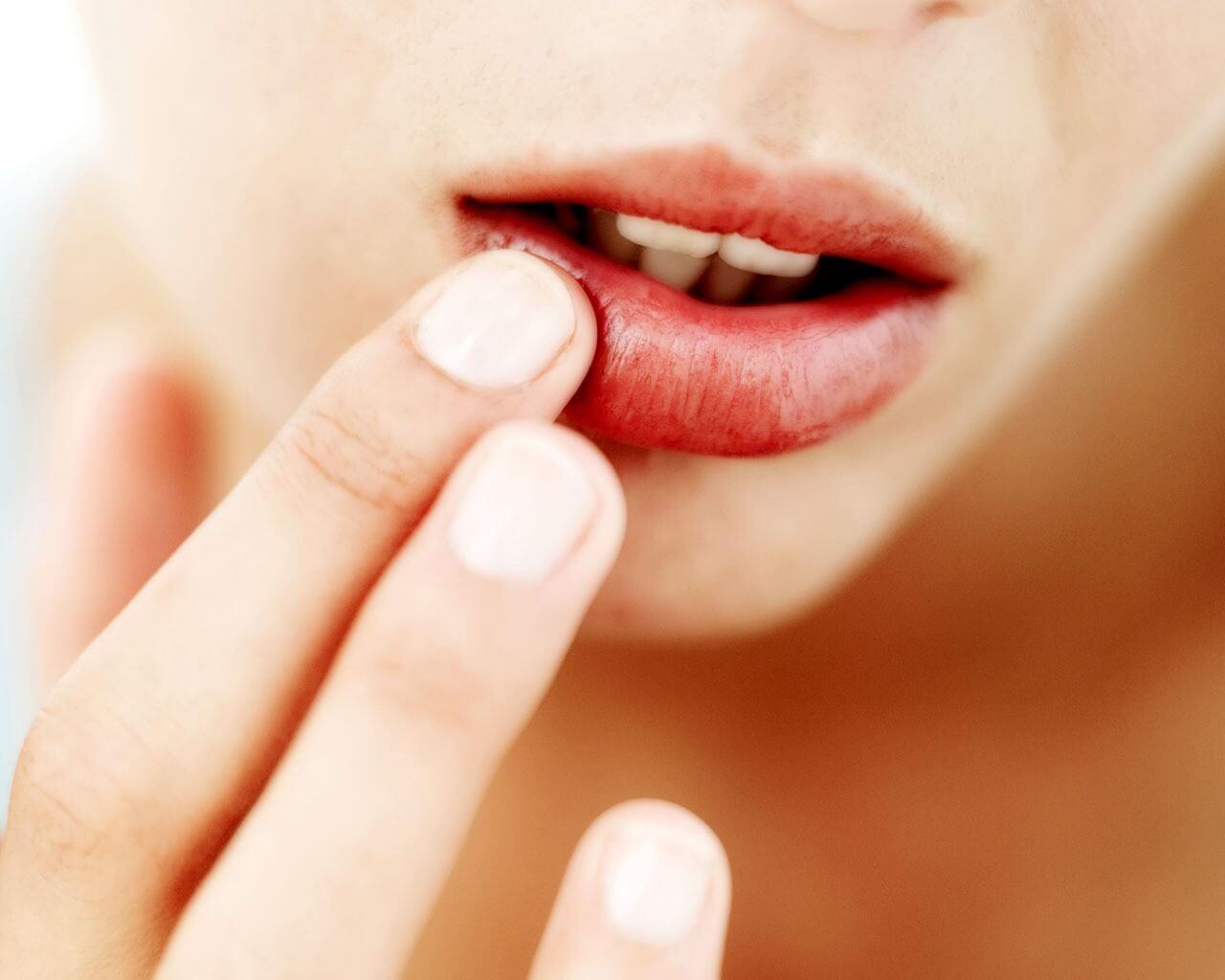 Витамины при герпесе: секрет быстрого лечения