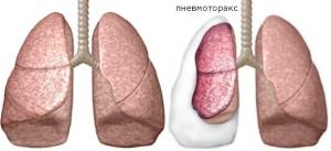 Появление пневмоторакса сопровождается сильной болью в районе грудной клетки, чувством острой нехватки кислорода