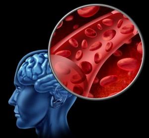 Ишемия - заболевание при котором нарушается кровообращение в головном мозге