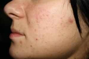 Что означают прыщи на лице: кожная сыпь, как признак заболевания