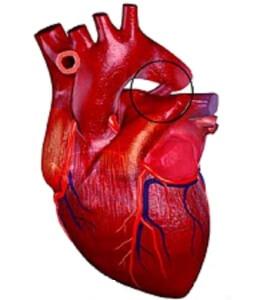 ОАП - один из видов пороков серца
